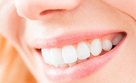 Será que o branqueamento dentário desgasta ou enfraquece os dentes?