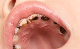 Tenho uma linha negra nos dentes. O que é? Como se trata?